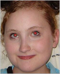 Rimuovere gli occhi rossi con Photoshop